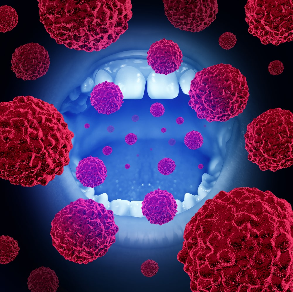 Signs of Oral Cancer