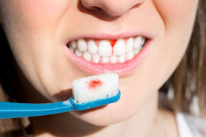 How to stop tooth cavity bleeding - Park Meadows Dental Medicine Hat